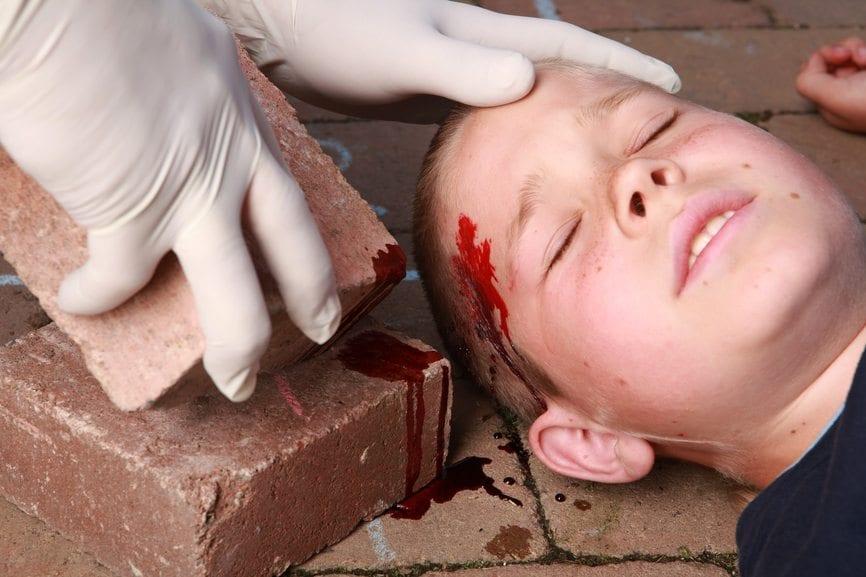 Head injury, brain damage, serious injury, traumatic brain injury